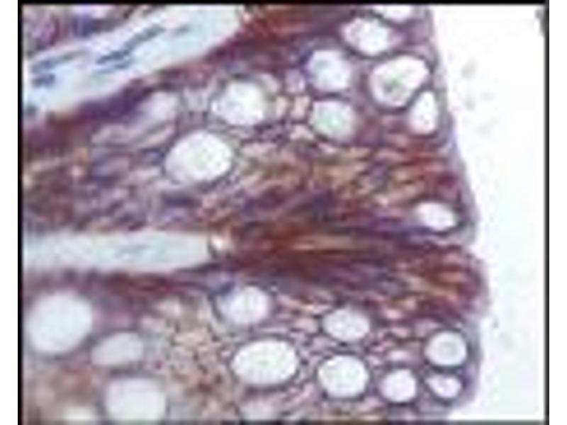 image for anti-Insulin-Like Growth Factor 1 Receptor (IGF1R) (AA 1210-1367) antibody (ABIN340955)