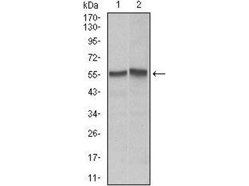 Western Blotting (WB) image for anti-Fas (TNF Receptor Superfamily, Member 6) (FAS) antibody (ABIN969519)