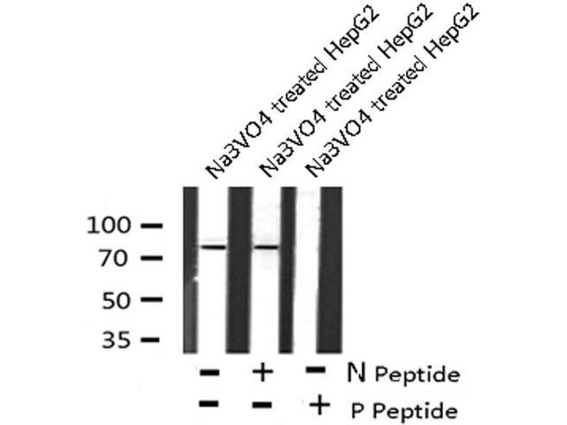 Western Blotting (WB) image for anti-Inhibitor of kappa Light Polypeptide Gene Enhancer in B-Cells, Kinase epsilon (IKBKE) (pSer172) antibody (ABIN6271478)