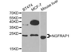 Image no. 1 for anti-Nerve Growth Factor Receptor (TNFRSF16) Associated Protein 1 (NGFRAP1) antibody (ABIN6571039)