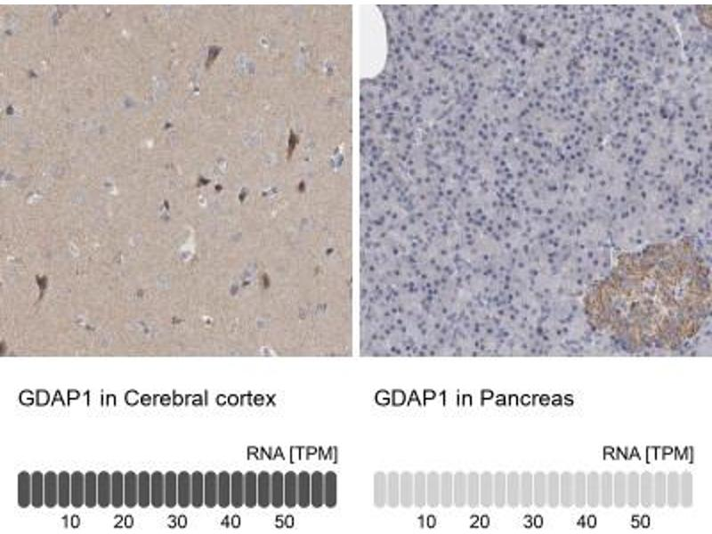 Immunohistochemistry (Paraffin-embedded Sections) (IHC (p)) image for anti-Ganglioside-Induced Differentiation-Associated Protein 1 (GDAP1) antibody (ABIN4313789)