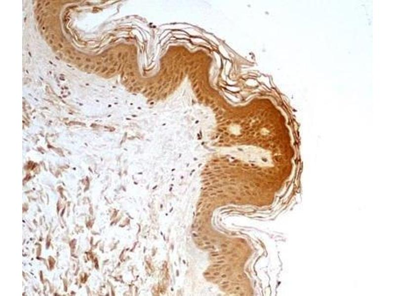 Immunohistochemistry (Paraffin-embedded Sections) (IHC (p)) image for anti-Estrogen-Related Receptor alpha (ESRRA) (AA 1-50), (N-Term) antibody (ABIN4309527)