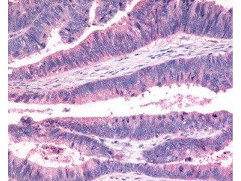 Immunohistochemistry (Paraffin-embedded Sections) (IHC (p)) image for anti-FZD7 antibody (Frizzled Family Receptor 7) (N-Term) (ABIN4312615)