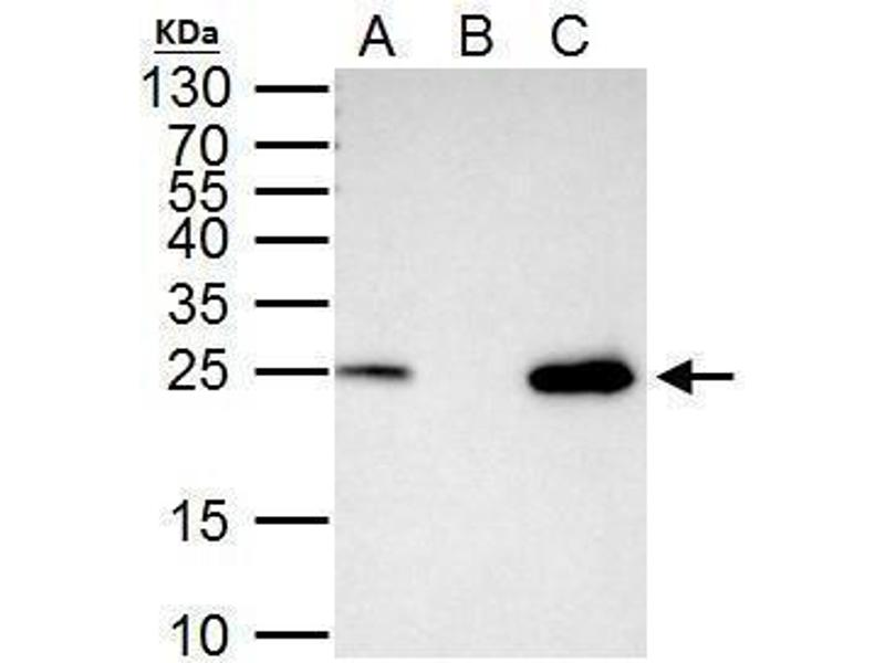 Immunoprecipitation (IP) image for anti-Transcription Factor A, Mitochondrial (TFAM) (Center) antibody (ABIN2855585)