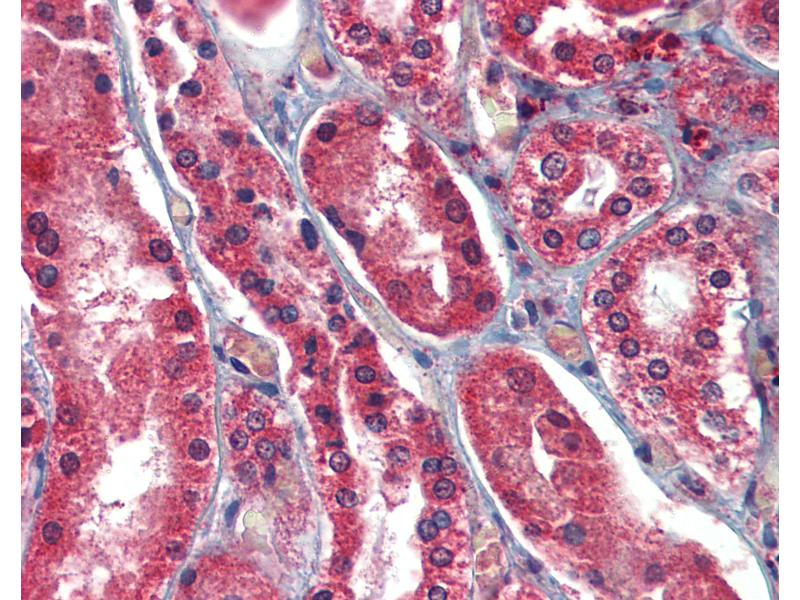 Immunohistochemistry (IHC) image for anti-Apoptosis-Inducing Factor, Mitochondrion-Associated, 1 (AIFM1) (AA 593-606) antibody (ABIN462451)