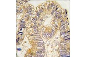 Image no. 1 for anti-Chloride Intracellular Channel 5 (CLIC5) antibody (ABIN359754)