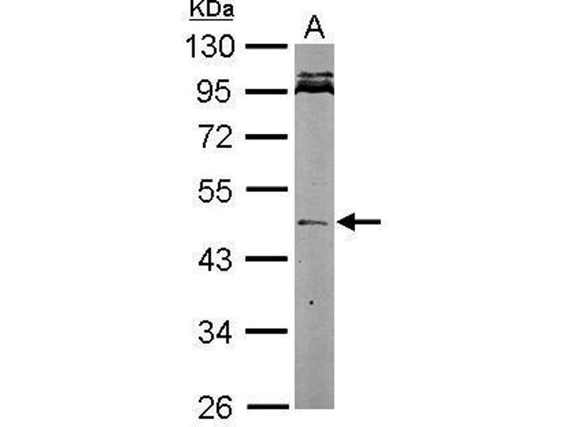 Western Blotting (WB) image for anti-Nodal Homolog (Mouse) (NODAL) (Center) antibody (ABIN2856412)