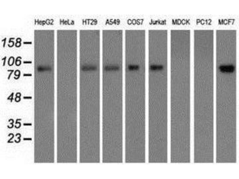 Western Blotting (WB) image for anti-Glucose-6-Phosphate Dehydrogenase (G6PD) antibody (ABIN4314526)
