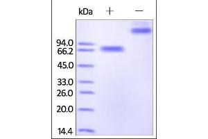 Image no. 1 for CD244 Molecule, Natural Killer Cell Receptor 2B4 (CD244) (AA 22-221) (Active) protein (Fc Tag) (ABIN2180732)