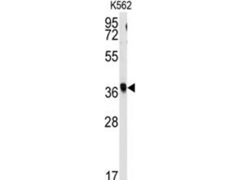 Image no. 3 for anti-Replication Factor C (Activator 1) 2, 40kDa (RFC2) antibody (ABIN3001633)