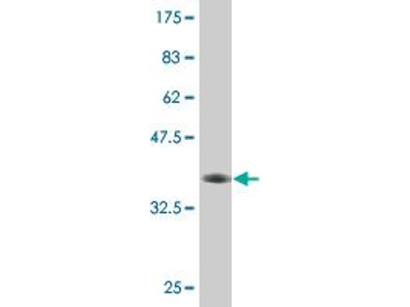 Image no. 3 for anti-ATP-Binding Cassette, Sub-Family C (CFTR/MRP), Member 11 (ABCC11) (AA 433-532) antibody (ABIN529878)