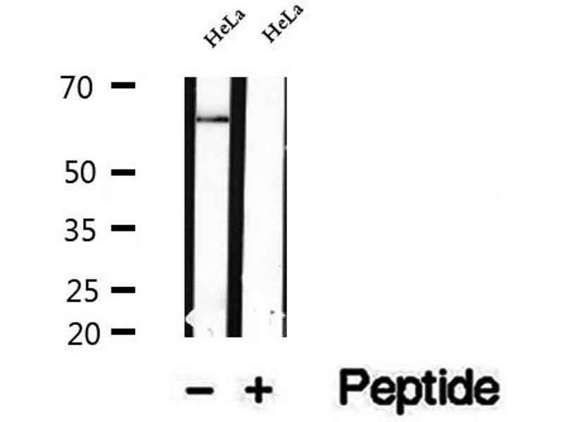 Western Blotting (WB) image for anti-Nuclear Factor of kappa Light Polypeptide Gene Enhancer in B-Cells Inhibitor, zeta (NFKBIZ) antibody (ABIN6263630)