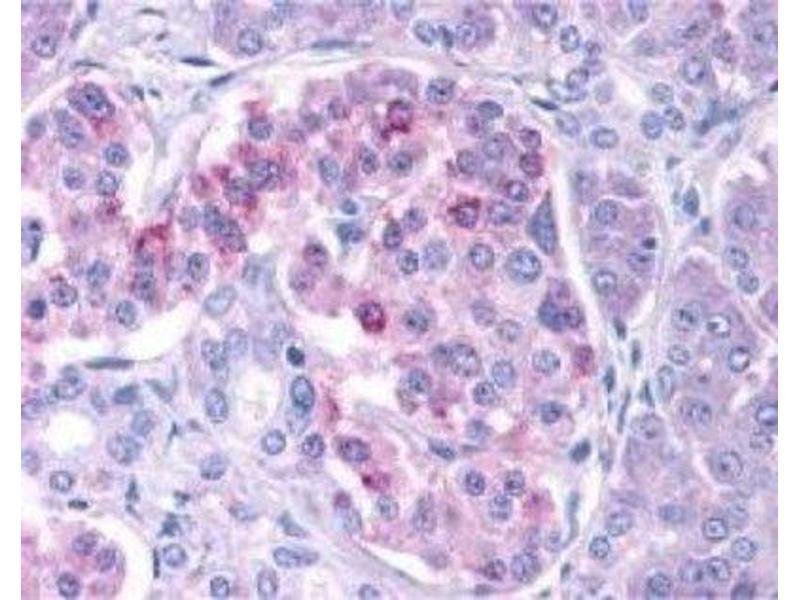 Immunohistochemistry (Paraffin-embedded Sections) (IHC (p)) image for anti-Inhibitor of kappa Light Polypeptide Gene Enhancer in B-Cells, Kinase epsilon (IKBKE) (C-Term) antibody (ABIN4324306)