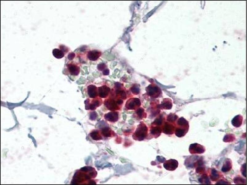 image for anti-NCF1 antibody (Neutrophil Cytosol Factor 1) (C-Term) (ABIN372580)