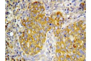 Immunohistochemistry (IHC) image for anti-Fibroblast Growth Factor 7 (FGF7) (N-Term) antibody (ABIN3030938)