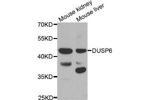 Image no. 1 for anti-Dual Specificity Phosphatase 6 (DUSP6) antibody (ABIN3017521)