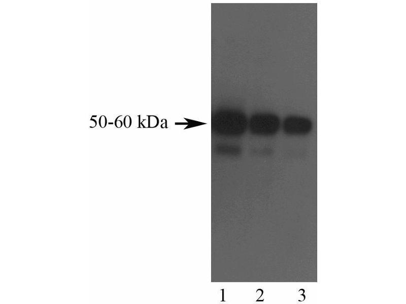 Western Blotting (WB) image for anti-CNTF Receptor alpha antibody (Ciliary Neurotrophic Factor Receptor) (ABIN967632)