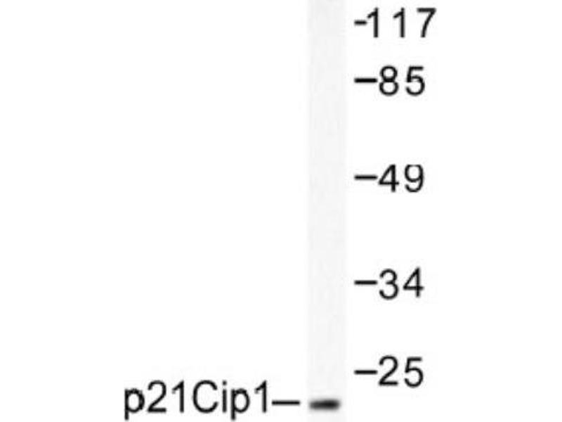 Western Blotting (WB) image for anti-Cyclin-Dependent Kinase Inhibitor 1A (p21, Cip1) (CDKN1A) antibody (ABIN4342318)