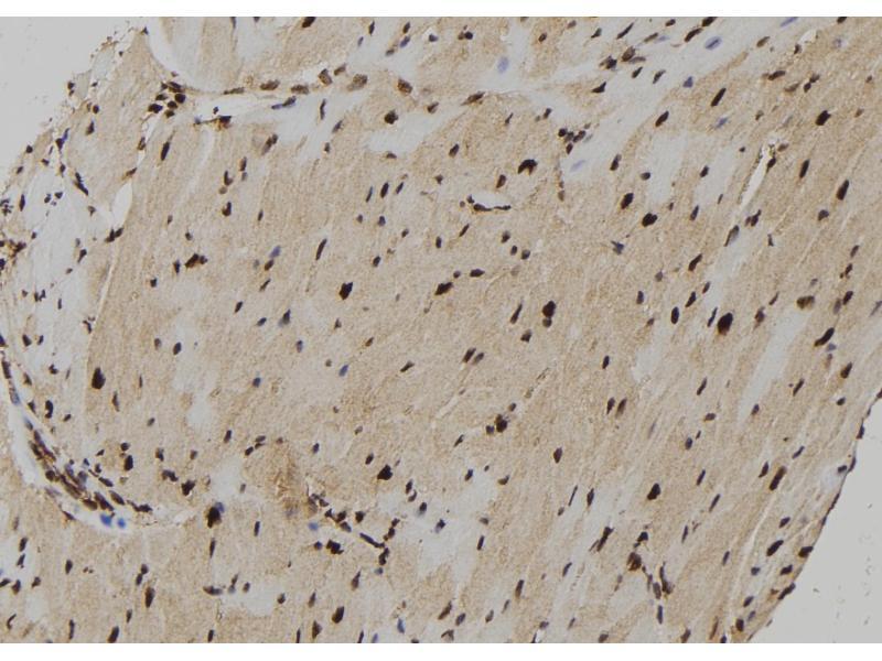Immunohistochemistry (IHC) image for anti-P21-Activated Kinase 2 (PAK2) (pSer815) antibody (ABIN6270224)