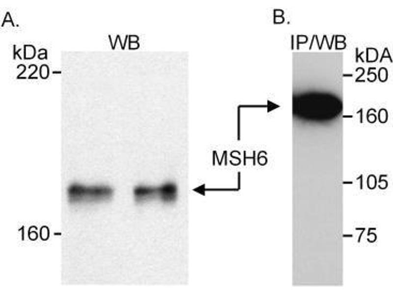 Western Blotting (WB) image for anti-MutS Homolog 6 (E. Coli) (MSH6) (AA 350-400) antibody (ABIN151794)