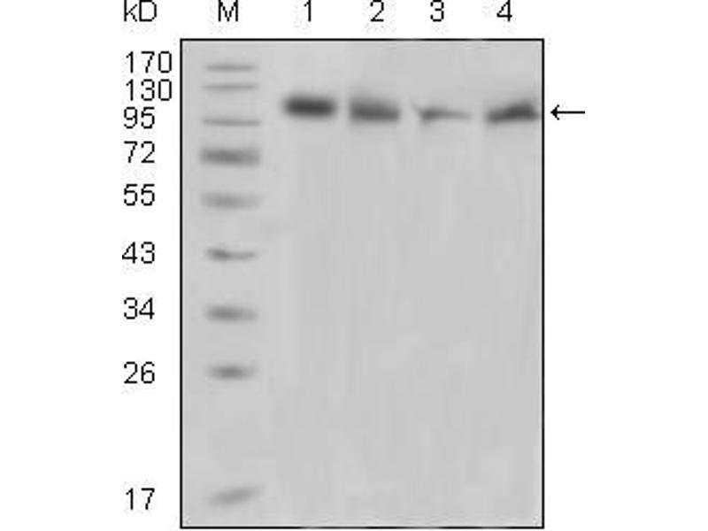 Western Blotting (WB) image for anti-PTK2B Protein tyrosine Kinase 2 beta (PTK2B) (AA 815-997) antibody (ABIN1724705)