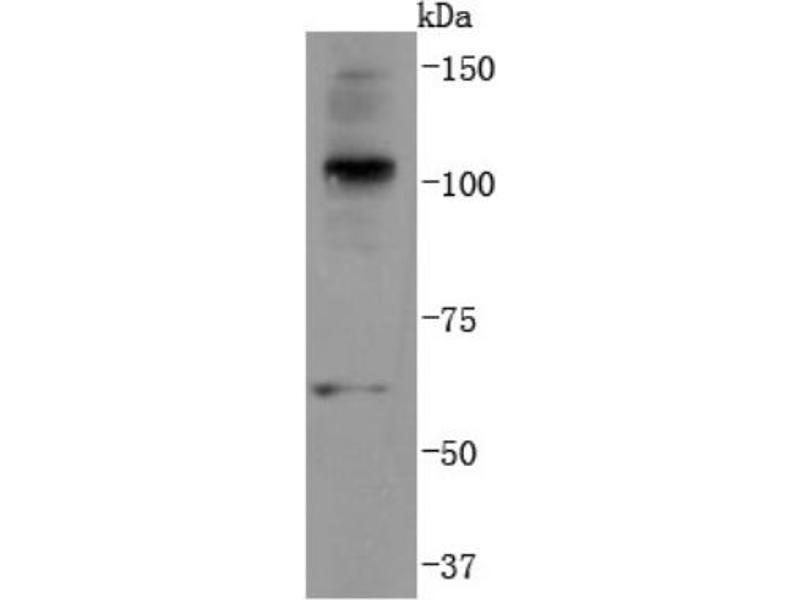 Western Blotting (WB) image for anti-Ubiquitin B (UBB) (AA 50-150) antibody (ABIN5947900)