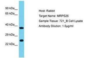 Image no. 1 for anti-Mitochondrial Ribosomal Protein S26 (MRPS26) (AA 134-183) antibody (ABIN6750657)