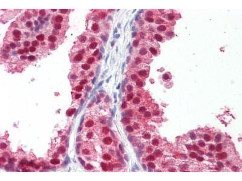 Immunohistochemistry (IHC) image for anti-Retinoid X Receptor, beta (RXRB) (Hinge Region) antibody (ABIN1104094)