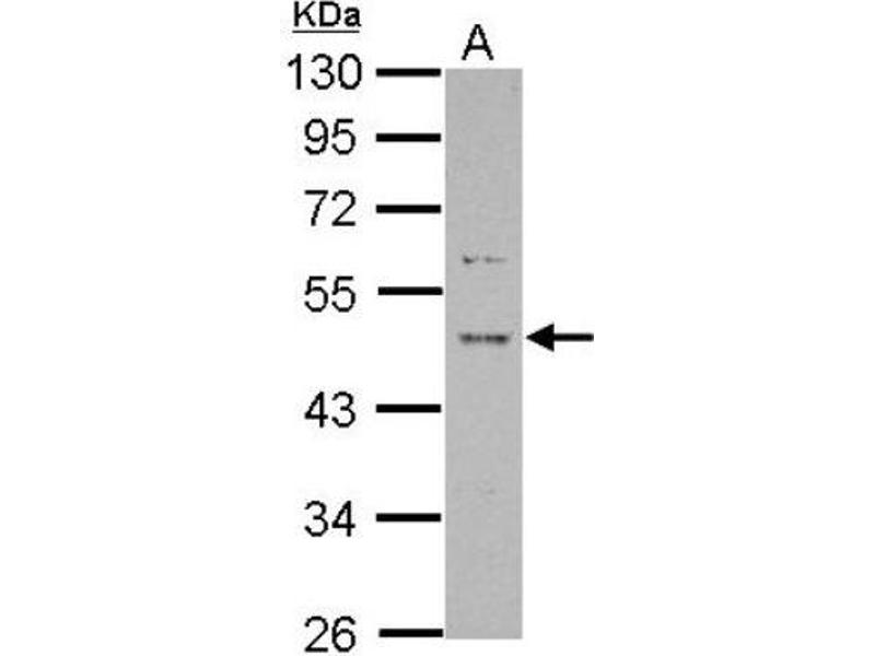 Western Blotting (WB) image for anti-Proline Rich 5 (Renal) (PRR5) (Center) antibody (ABIN4348033)
