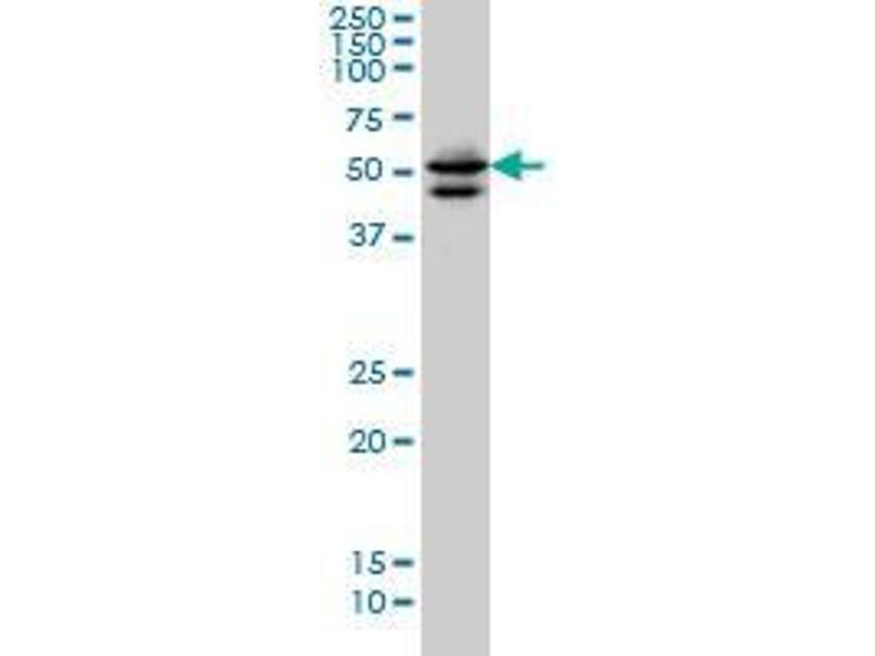 Immunohistochemistry (IHC) image for anti-GATA Binding Protein 2 (GATA2) (AA 1-103) antibody (ABIN393992)