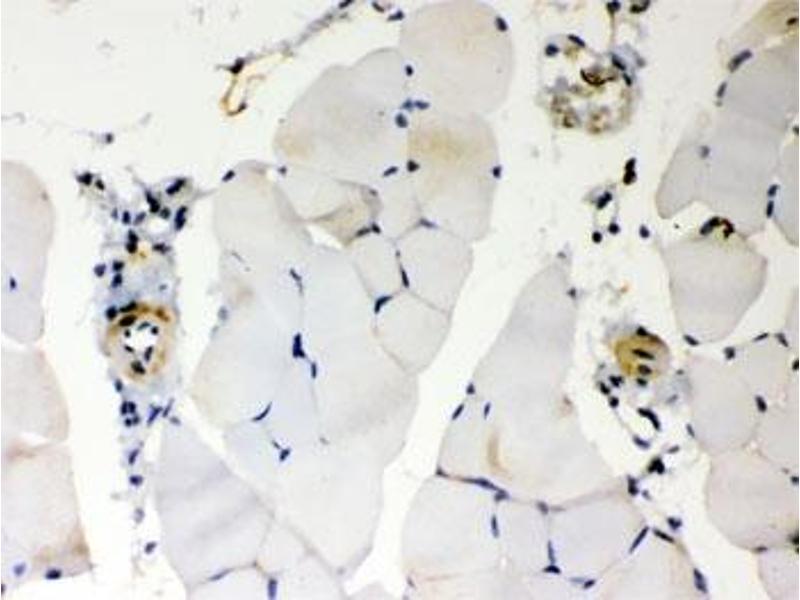 Immunohistochemistry (IHC) image for anti-BCL2-Antagonist/killer 1 (BAK1) (AA 22-211) antibody (ABIN4950296)