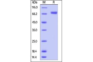 SDS-PAGE (SDS) image for Hemagglutinin (HA) (AA 19-523) (Active) protein (AVI tag,Biotin,His tag) (ABIN4949044)