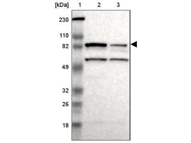 Western Blotting (WB) image for anti-RPS6KA6 antibody (Ribosomal Protein S6 Kinase, 90kDa, Polypeptide 6) (ABIN4351290)