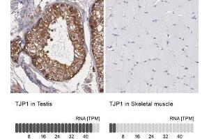 Immunohistochemistry (Paraffin-embedded Sections) (IHC (p)) image for anti-Tight Junction Protein 1 (Zona Occludens 1) (TJP1) antibody (ABIN4359735)