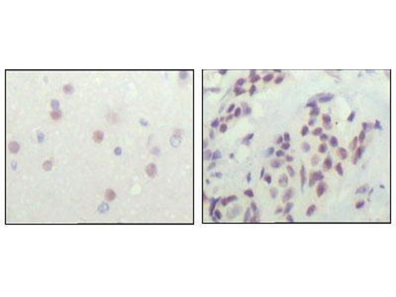 Immunohistochemistry (IHC) image for anti-Nuclear Receptor Co-Repressor 1 (NCOR1) (AA 1-192) antibody (ABIN2869350)