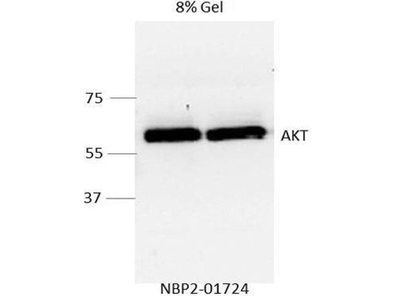 Western Blotting (WB) image for anti-AKT antibody (V-Akt Murine Thymoma Viral Oncogene Homolog 1) (ABIN4279004)
