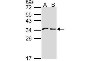 Image no. 3 for anti-Killer Cell Lectin-Like Receptor Subfamily C, Member 1 (KLRC1) (N-Term) antibody (ABIN2856611)