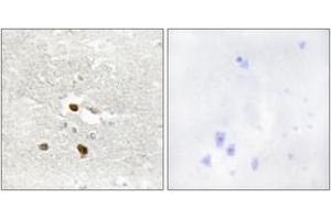 Image no. 2 for anti-Zinc Finger Protein 287 (ZNF287) (AA 241-290) antibody (ABIN1534135)