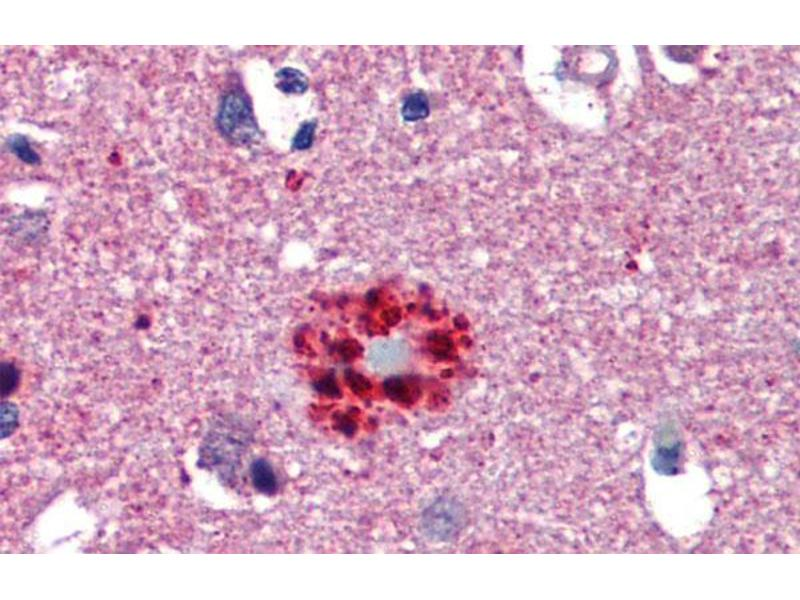 Immunohistochemistry (IHC) image for anti-Transcription Factor 21 (TCF21) (N-Term) antibody (ABIN2777930)