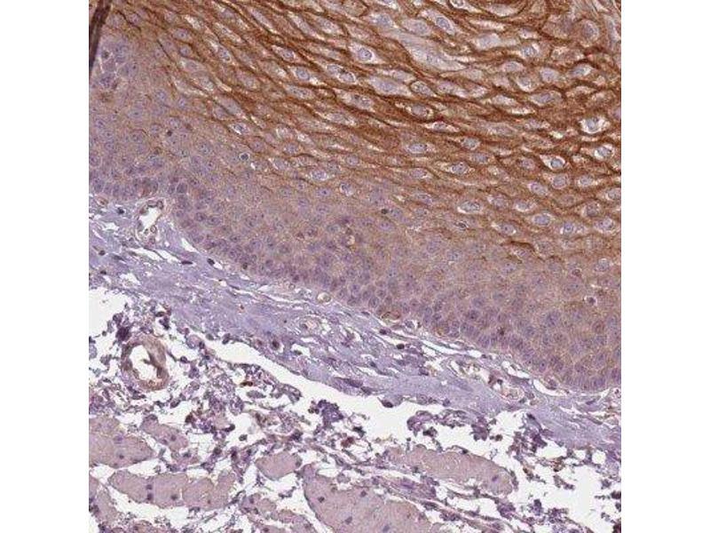 Immunohistochemistry (IHC) image for anti-Kallikrein-Related Peptidase 13 (KLK13) antibody (ABIN4328017)