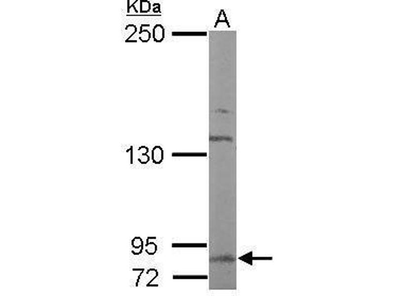 Western Blotting (WB) image for anti-DDR2 antibody (Discoidin Domain Receptor tyrosine Kinase 2) (C-Term) (ABIN2855450)