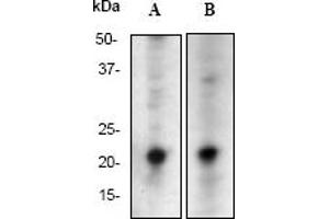 Western Blotting (WB) image for anti-HRAS antibody (V-Ha-Ras Harvey Rat Sarcoma Viral Oncogene Homolog) (C-Term) (ABIN189394)