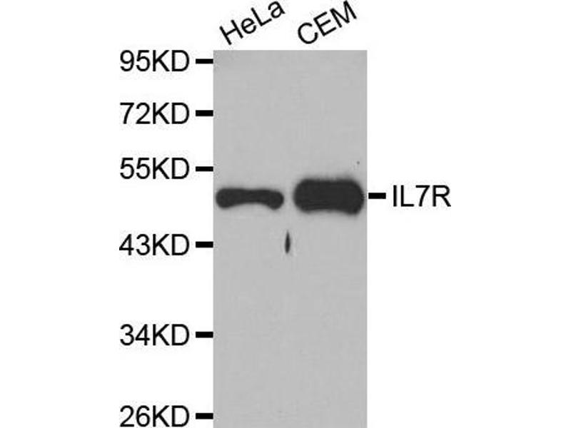 Western Blotting (WB) image for anti-Interleukin 7 Receptor (IL7R) antibody (ABIN5663842)