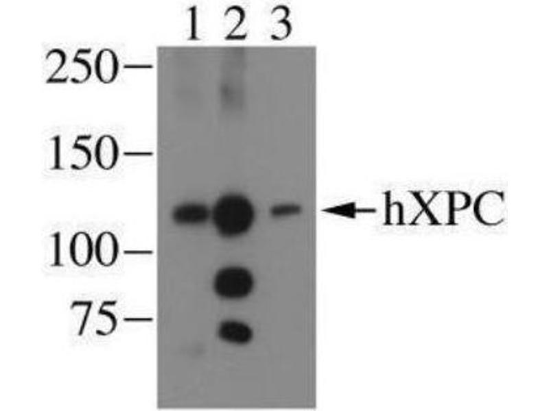 Western Blotting (WB) image for anti-Xeroderma Pigmentosum, Complementation Group C (XPC) antibody (ABIN151924)