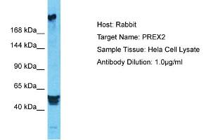 Image no. 1 for anti-DEP Domain Containing 2 (DEPDC2) (N-Term) antibody (ABIN2791874)