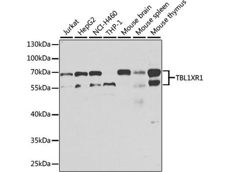 Image no. 1 for anti-Transducin (Beta)-Like 1 X-Linked Receptor 1 (TBL1XR1) antibody (ABIN6567965)