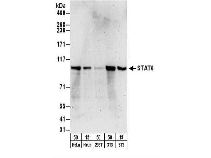Western Blotting (WB) image for anti-STAT6 antibody (Signal Transducer and Activator of Transcription 6, Interleukin-4 Induced) (AA 600-650) (ABIN153168)