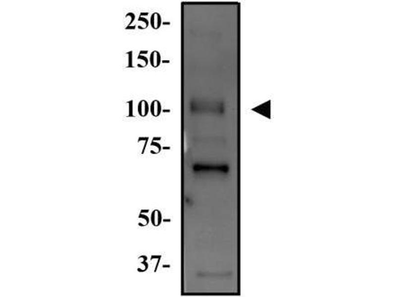 Western Blotting (WB) image for anti-WNK4 antibody (WNK Lysine Deficient Protein Kinase 4) (AA 200-300) (ABIN153223)