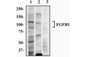 Western Blotting (WB) image for anti-Fibroblast Growth Factor Receptor 1 (FGFR1) (Isoform beta) antibody (ABIN250616)