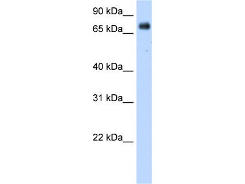 Western Blotting (WB) image for anti-P450 (Cytochrome) Oxidoreductase (POR) (Middle Region) antibody (ABIN2773843)